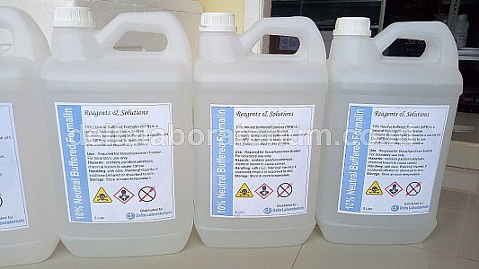 Neutral Buffered Formalin 10%